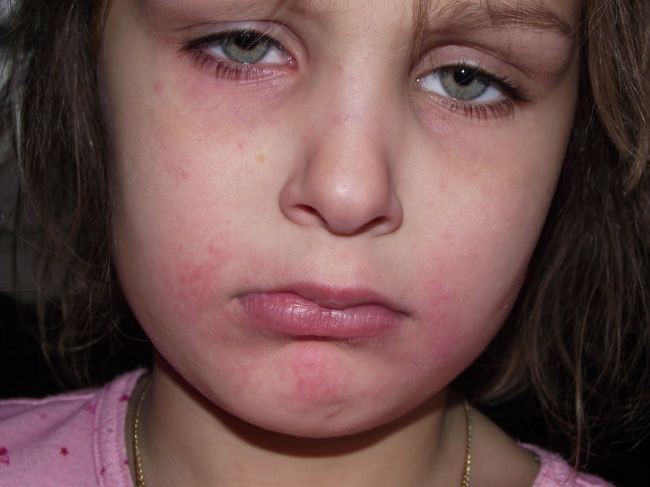 Anaphylaxis - the hidden impact